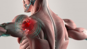 SHOULDER PAIN – THE WORKOUT CRUSHER