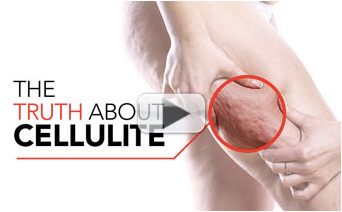 CELLULITE…The TRUTH About Getting Rid Of It!
