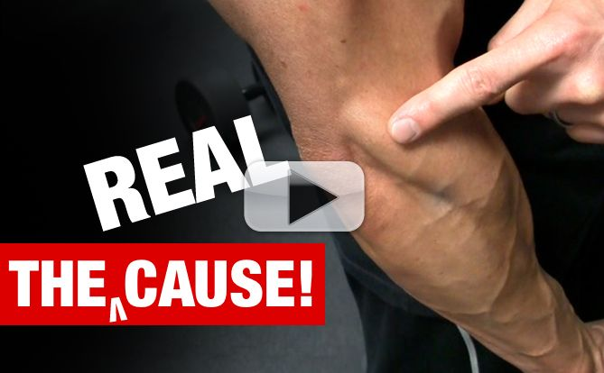 tennis-elbow-cause-and-exercises-yt-pl
