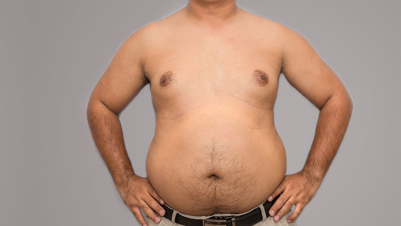 what regular chest fat looks like on a male body