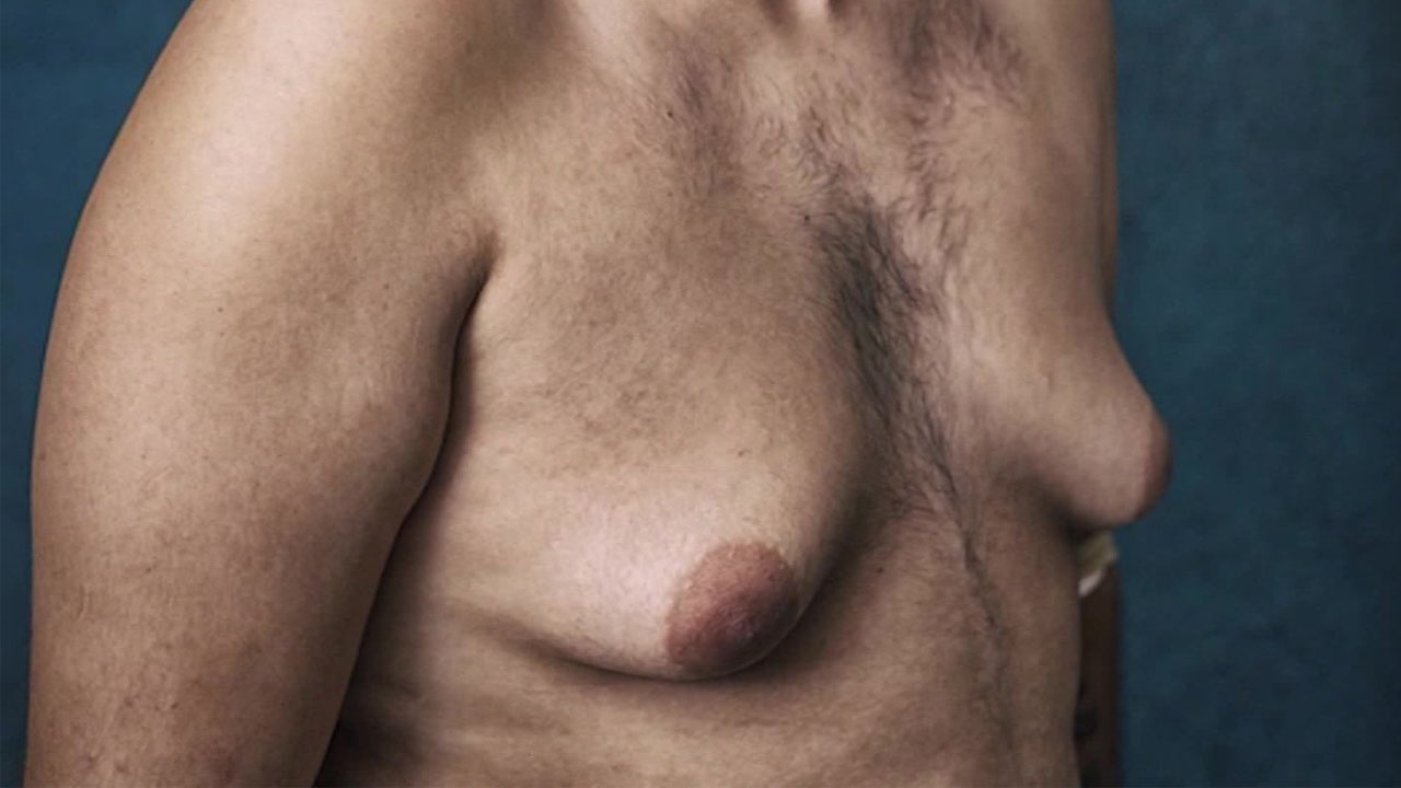 what gynecomastia looks like on a man's body