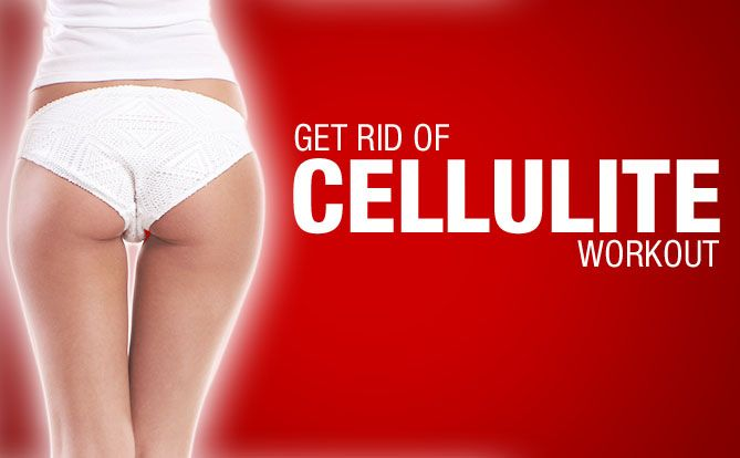 how to really get rid of cellulite