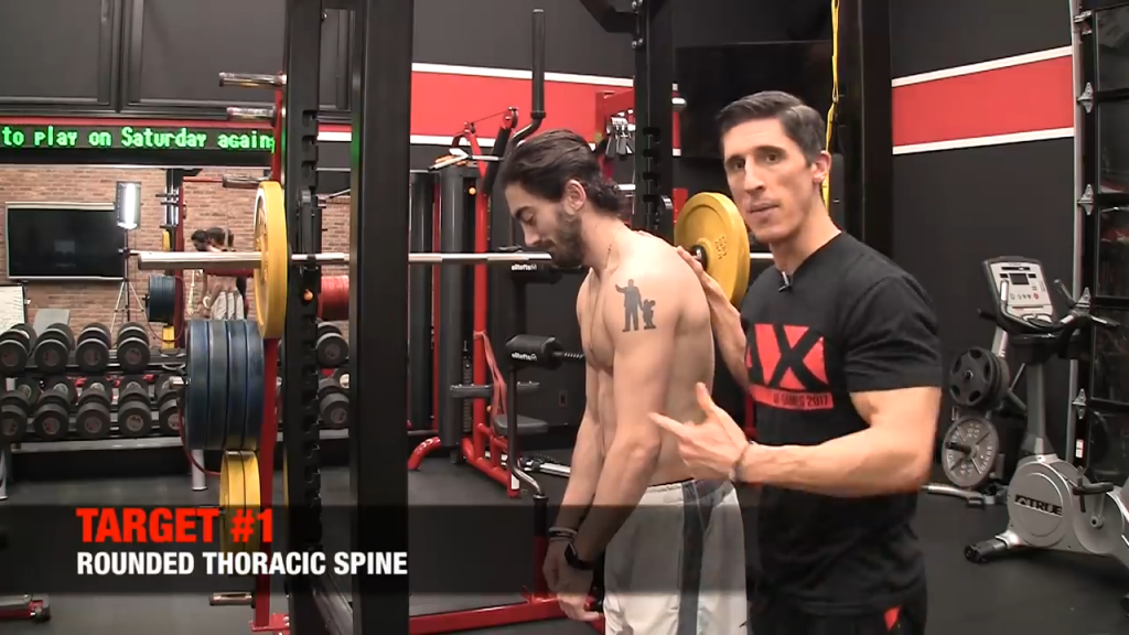 rounded thoracic spine posture problem