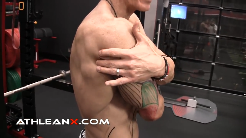 the long head of the triceps connects to the scapula